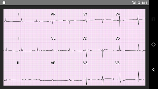 ECG 100 Clinical Cases pc screenshot 1