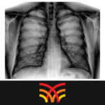 Chest Radiographs icon