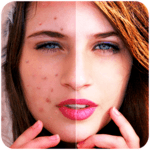 Face Blemishes Cleaner & Photo Scars Remover icon