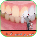 تخلص من اصفرار الأسنان icon