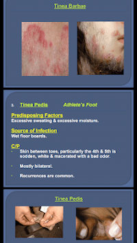 All Skin Infections & Treatments pc screenshot 1